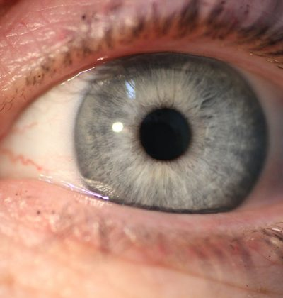 Research to Support Iridology